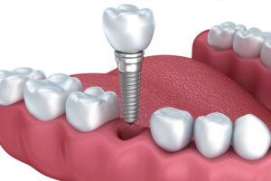 protesi dentale fissa roma salario trieste