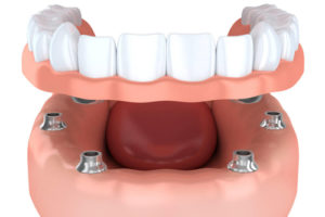 protesi dentale mobile roma salario trieste