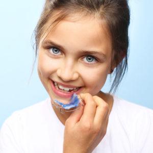 ortodonzia bambini roma salario trieste